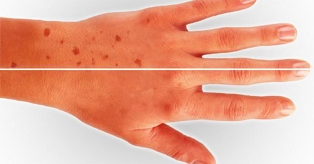 Пигментные пятна на коже совсем не проблема, если знаешь правильный рецепт!