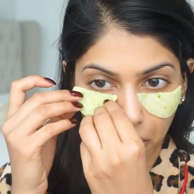 5 способов убрать синяки, отёки и мешки под глазами без аптечных средств