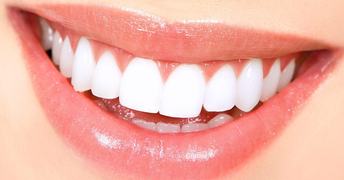 Вот как избавиться от зубного камня дома без химии и последствий