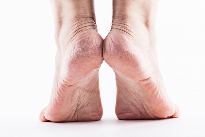 Простое средство для чистки ног в разы эффективнее пемзы и электрической пилки!