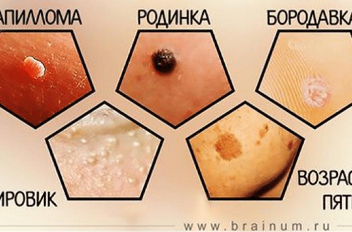 Бородавки, родинки, папилломы и пятна на коже удаляем без медикаментов, естественным путём