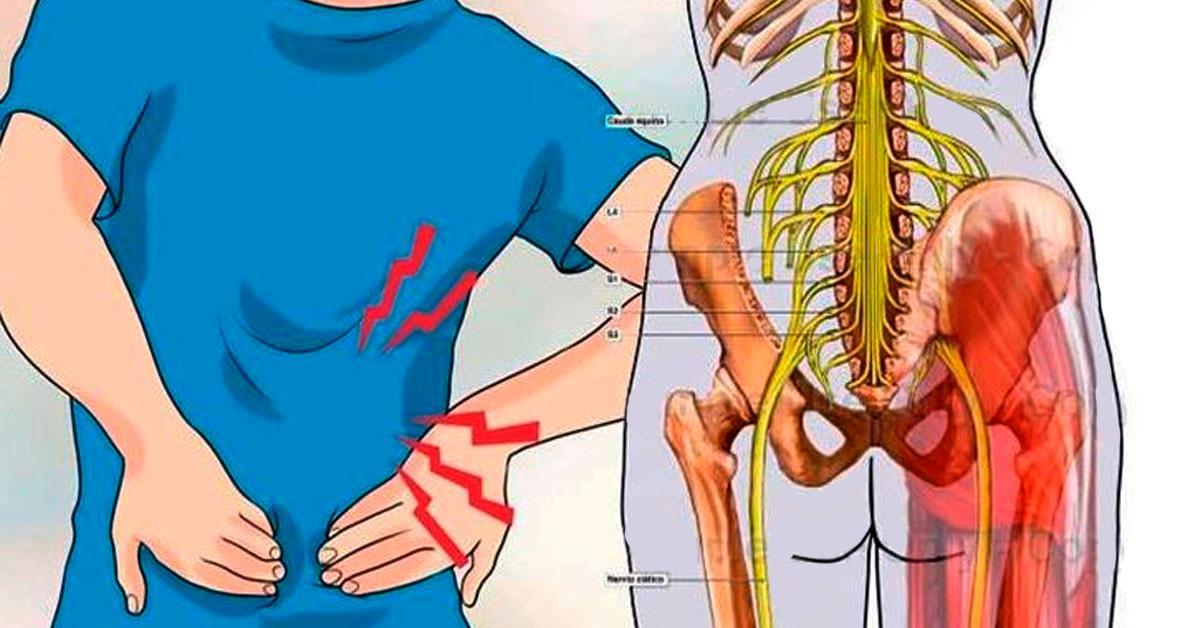 Воспаление седалищного нерва: достаточно 1 легкого упражнения, чтобы избавиться от боли