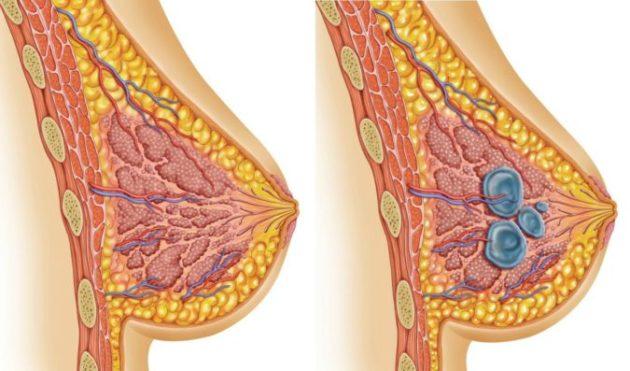 Маммологи обеспокоены! Девушки делают с грудью то, что строго противопоказано! (6 вещей)