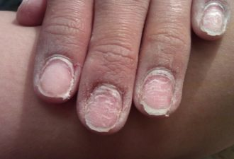 Чем грозит гель-лак вашим ногтям. Прочесть всем!