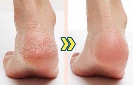 Огрубела кожа на ногах? Трещины и мозоли исчезают благодаря 1 средству
