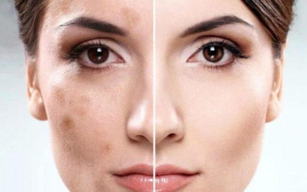 Рекомендую простую маску: убирает пигментацию и родимые пятна и разглаживают морщины