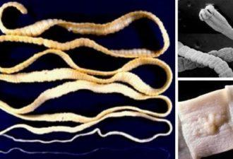 Как быстро и легко удалить паразитов из кишечника? 4 домашних средства