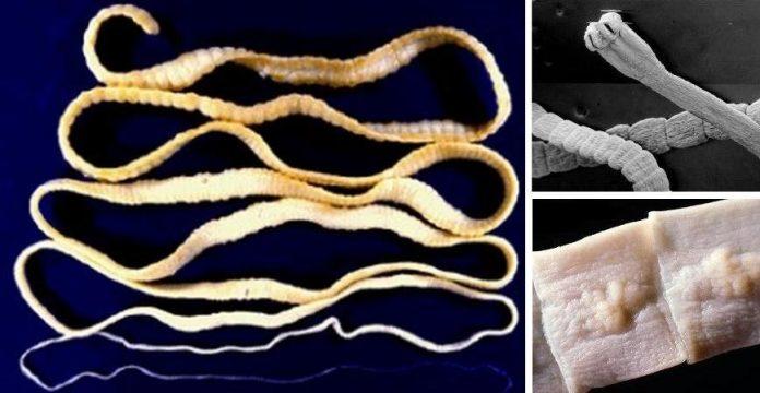 Как быстро и безопасно удалить паразитов из кишечника? 4 домашних рецепта