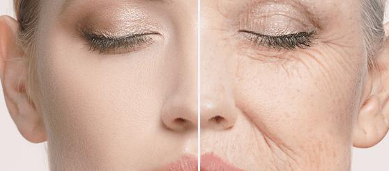 2 естественных крема против старения: для жирной и сухой кожи