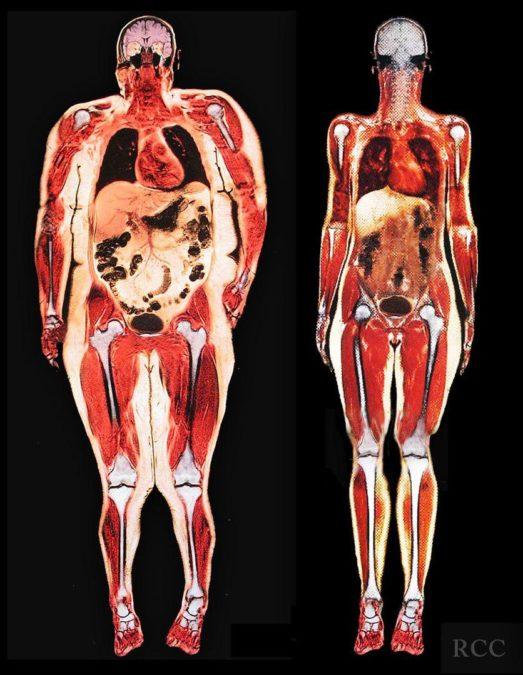 Удалите все токсины и жиры из своего тела в кратчайший срок
