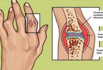 3 000-летние методы лечения ревматоидного артрита и воспаления