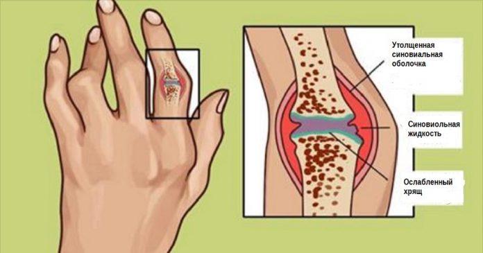 Тысячелетние методы лечения ревматоидного артрита и воспаления