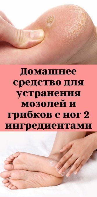 Домашнее средство для устранения мозолей и грибков с ног 2 ингредиентами