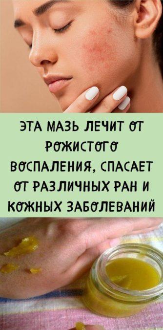 Эта мазь лечит от рожистого воспаления, спасает от различных ран и кожных заболеваний
