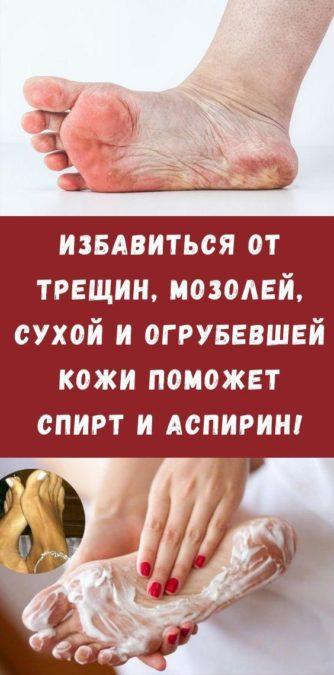 Избавиться от трещин, мозолей, сухой и огрубевшей кожи поможет спирт и аспирин!