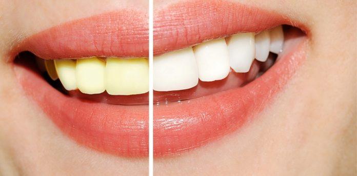 Недавно попробовала простейший натуральный отбеливатель для зубов - рекомендую!