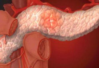 Вот как просто и быстро избавиться от панкреатита и улучшить работу поджелудочной железы! Подробнее в этом видео!