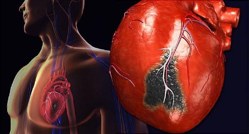 Сердечный приступ и никого рядом - как спастись, если некому помочь?