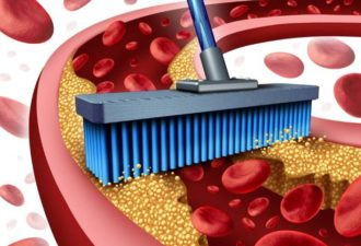 Как очистить сосуды от холестерина в домашних условиях!!! Просто и натурально!