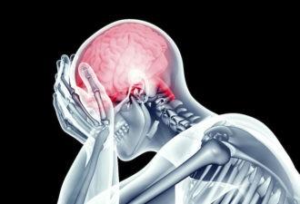 8 предупреждений, которые тело дает перед инсультом