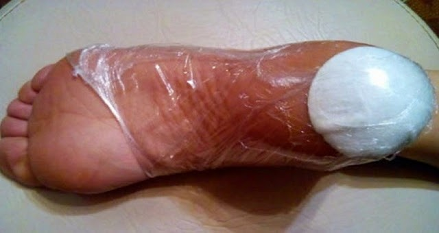 Это натуральное домашнее средство лечит трещины на пятках и мозоли в течение 10 дней
