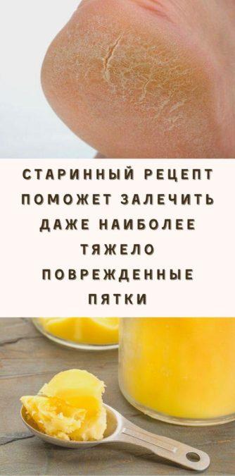 Старинный рецепт поможет залечить даже наиболее тяжело поврежденные пятки