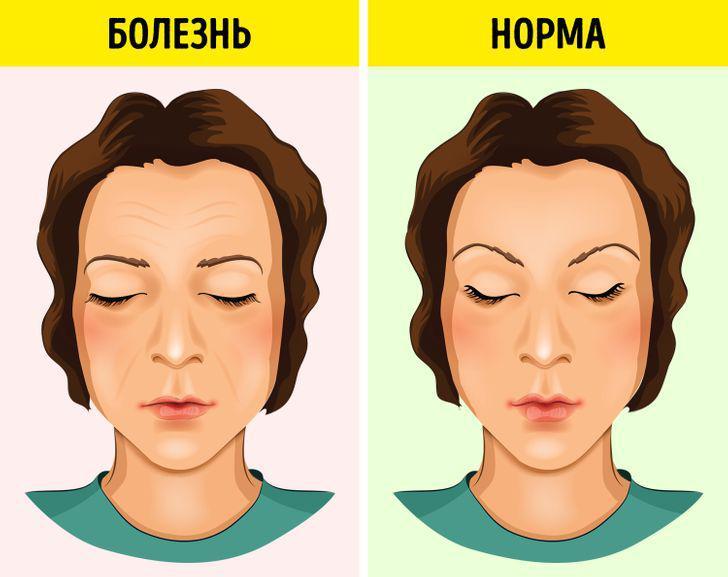 Болезни человека написаны на его лице! Читайте вес перечень недугов