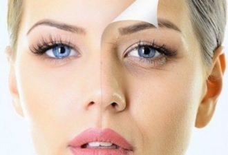 Как быстрее разгладить морщинки вокруг глаз? Эффективные маски, важные правила и маленькие хитрости!