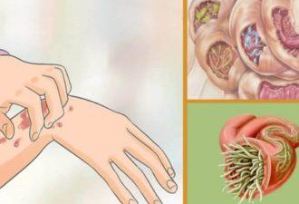 10 признаков того, что ваше тело полно амеб и других паразитов. Вот простой рецепт для их удаления!