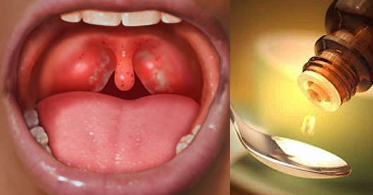 У вас часто болит горло, пропадает голос и мучает кашель? Этот рецепт для вас