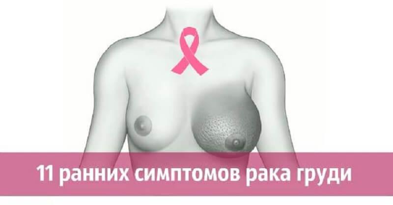 11 ранних симптомов рака груди, которые вовремя не замечают