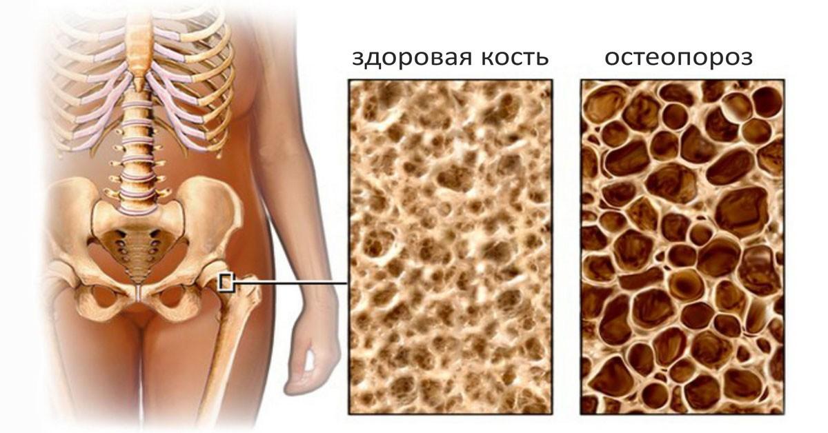 Эти 3 продукта - лучшие натуральные защитники костей от остеопороза!