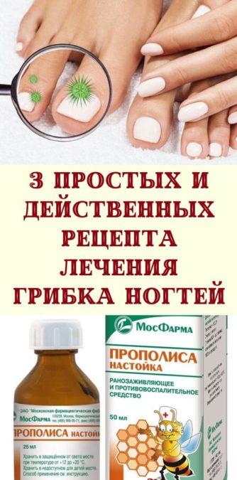 3 простых и действенных рецепта лечения грибка ногтей