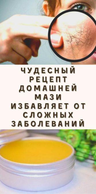 Чудесный рецепт домашней мази избавляет от сложных заболеваний