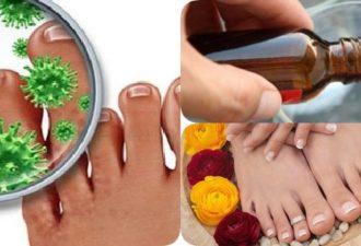 Три рецепта лечения грибка ногтей
