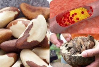 Холестерин: всего 4-6 штук этих орехов нормализуют его на 30 дней!