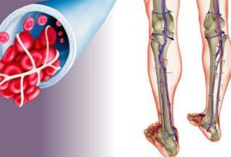 Активизация обменных процессов в крови и лимфе для восстановления здоровья