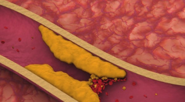 Почему холестерин не имеет отношения к атеросклерозу: как нас обманывают