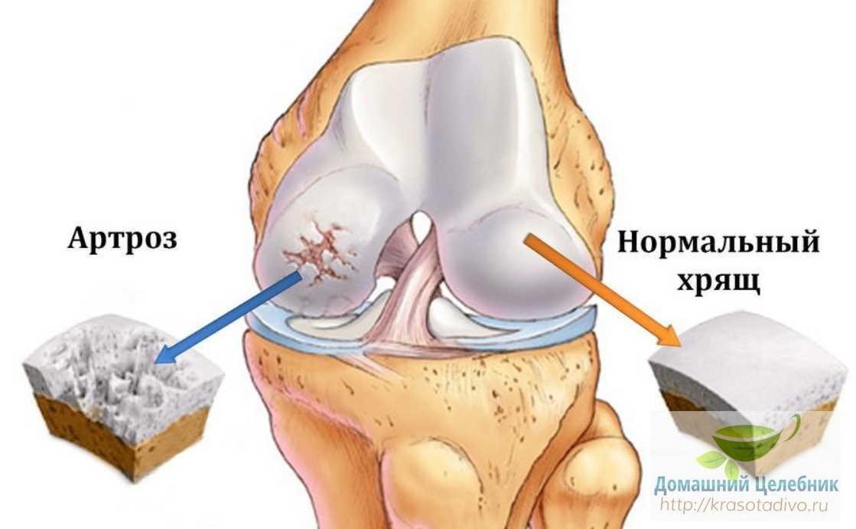 Тибетские рецепты лечения суставов помогут забыть об артрите и артрозе