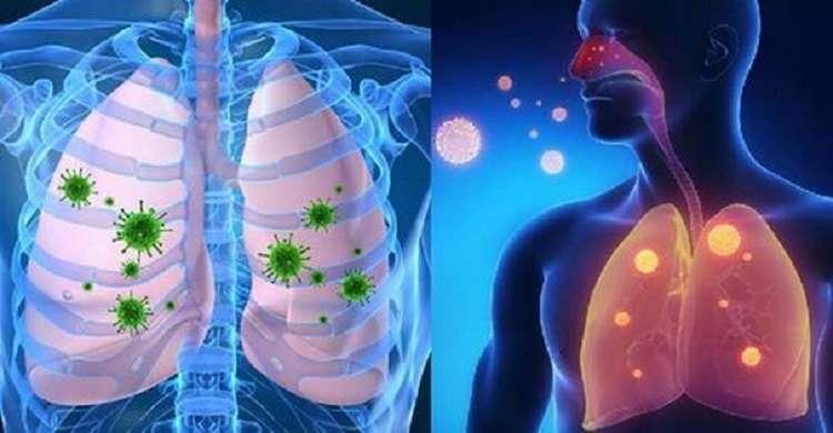 Натуральные домашние средства от вирусных инфекций, кашля, бронхита и простуды