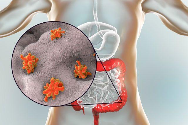 Как узнать, есть ли паразиты в организме и как от них избавиться