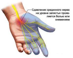 Натуральное и эффективное домашнее средство от боли в руках и суставах