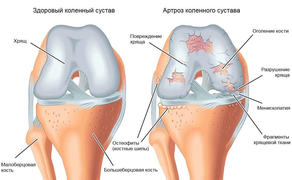 Рецепт старой настойки от боли в коленях