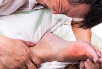 Снижаем уровень мочевой кислоты: артрит отступит, если добавить это в свой рацион