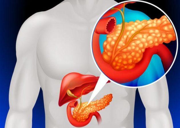 Как определить заболевание поджелудочной железы и 4 лучших рецепта лечения