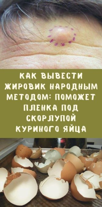Как вывести жировик народным методом: поможет пленка под скорлупой куриного яйца
